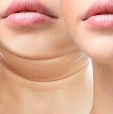 Double Chin Injections