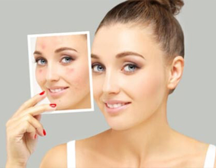 Benefits Of Acne Scar Treatment