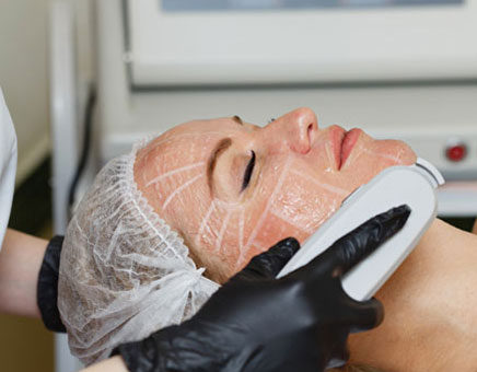 How Does Ultherapy Treatment Work