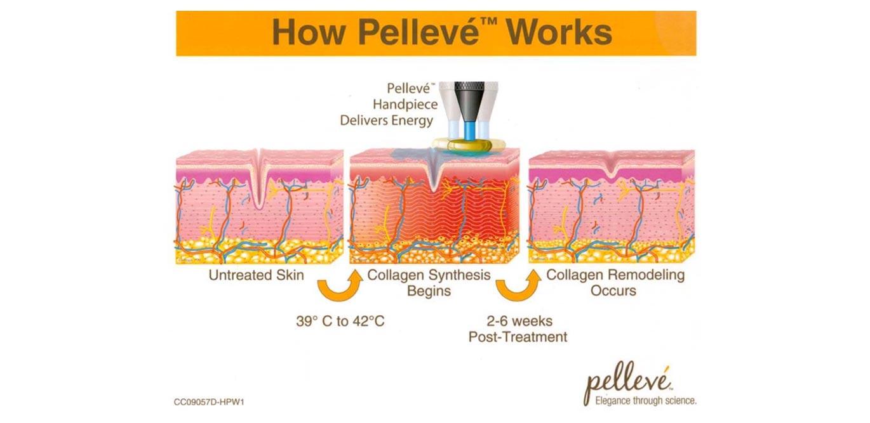 Pelleve Cosmetic