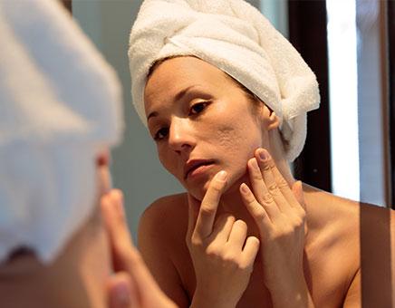 Picosure For Acne Scar Treatment