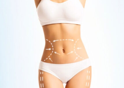 Sculpsure For Body And Chin