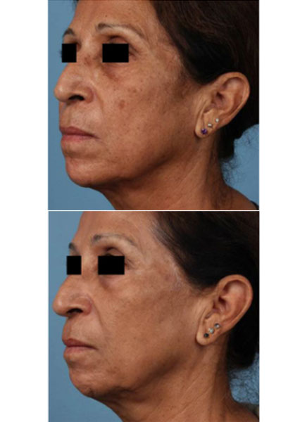 How Does The Picosure Laser