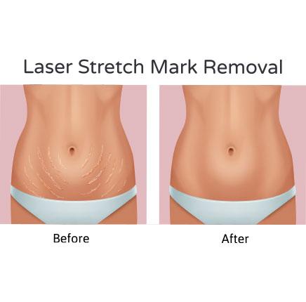 Stretch Mark Removal 1